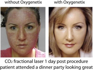 B and A CO2 Fractional Laser