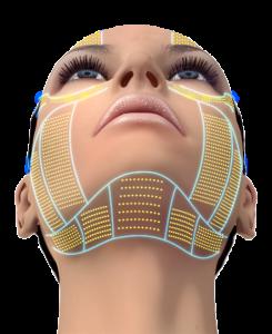 YDRAY-ulthera-cg-face-face-up-forehead