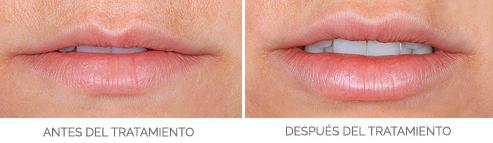 labios-aumento