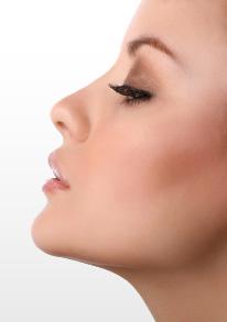 levantar nariz sin cirugia